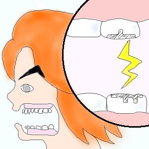 虫歯治療後の痛みにおけるTomoなりの考察